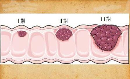 便秘与腹泻反复交替谨防大肠癌