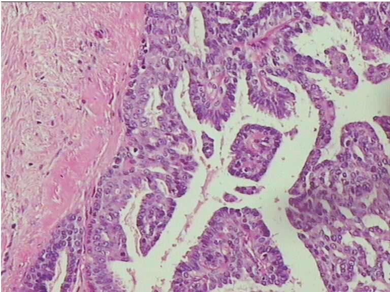 乳腺大导管内乳头状瘤的临床病理分析
