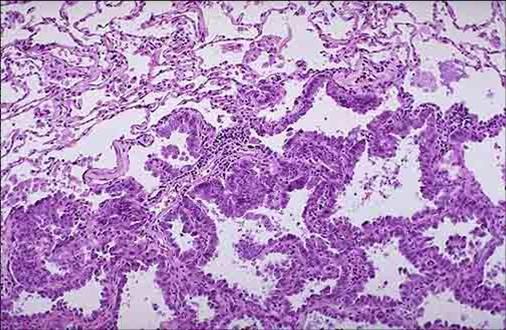 支气管癌一般分为四种组织学类型:鳞状上皮细胞癌,常发生于较大的