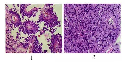 松果体区乳头状肿瘤临床病理