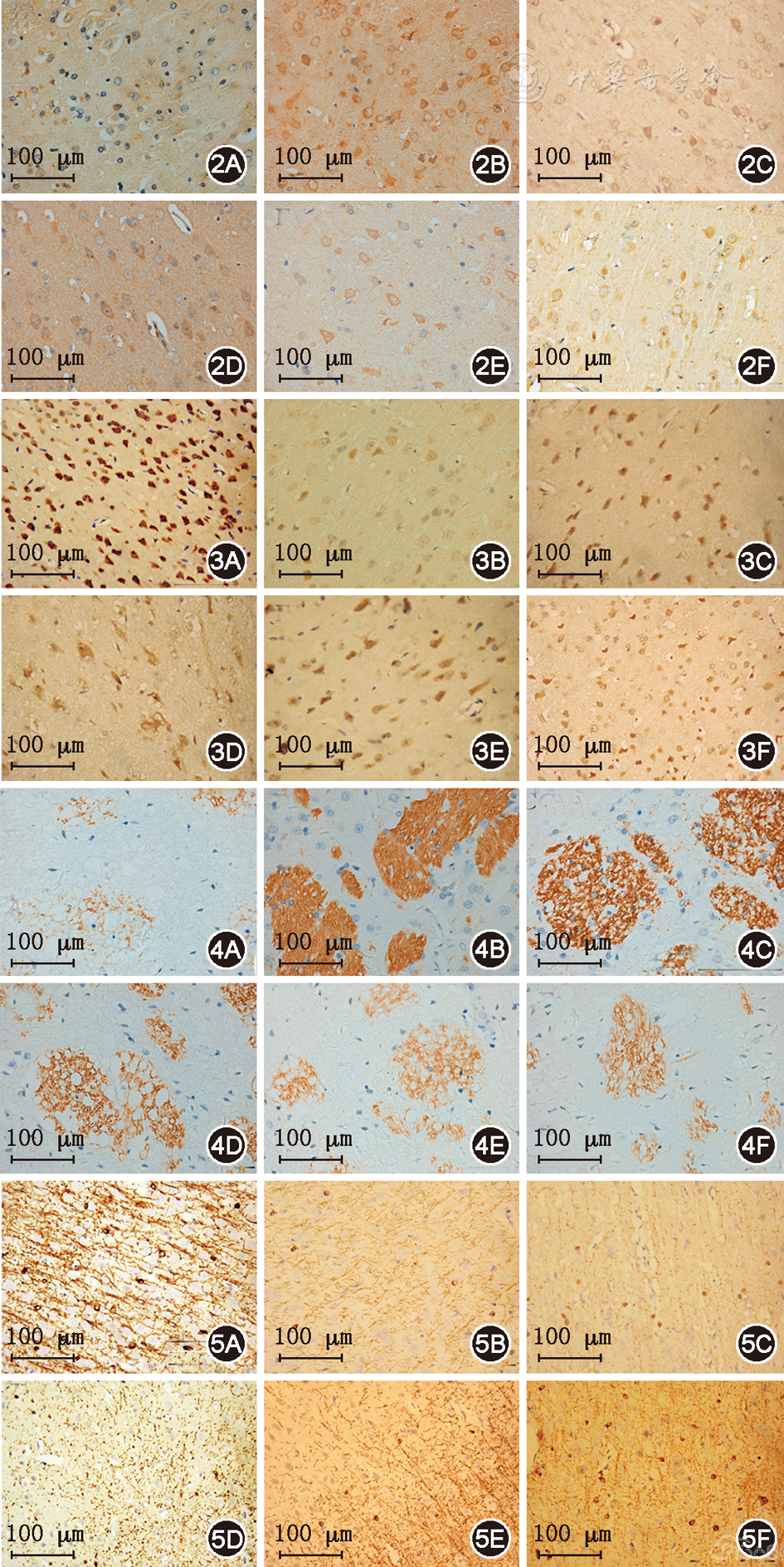 (1)NG2表达:NG2蛋白表达棕黄色颗粒,主要定位于少突胶质细胞前体细胞胞质内,但是由于脑缺血后梗死组织自溶及组织损伤的原因,部分神经元亦有波及,在本实验中以圆形或椭圆形有少量分支的NG2阳性细胞计数为准。脑缺血后,缺血中心可见部分NG2阳性细胞,缺血周围的正常脑组织及对侧脑组织也有少量表达,形态上NG2阳性细胞胞体呈圆形,放射状分支从胞体发出。梗死周边半暗带,NG2阳性细胞胞体呈扁圆形或胖圆形,分支变粗,突起变短并减少,聚集于梗死周,扩展向中心(图2)。进行阳性细胞计数发现,各实验组与对照组相比N