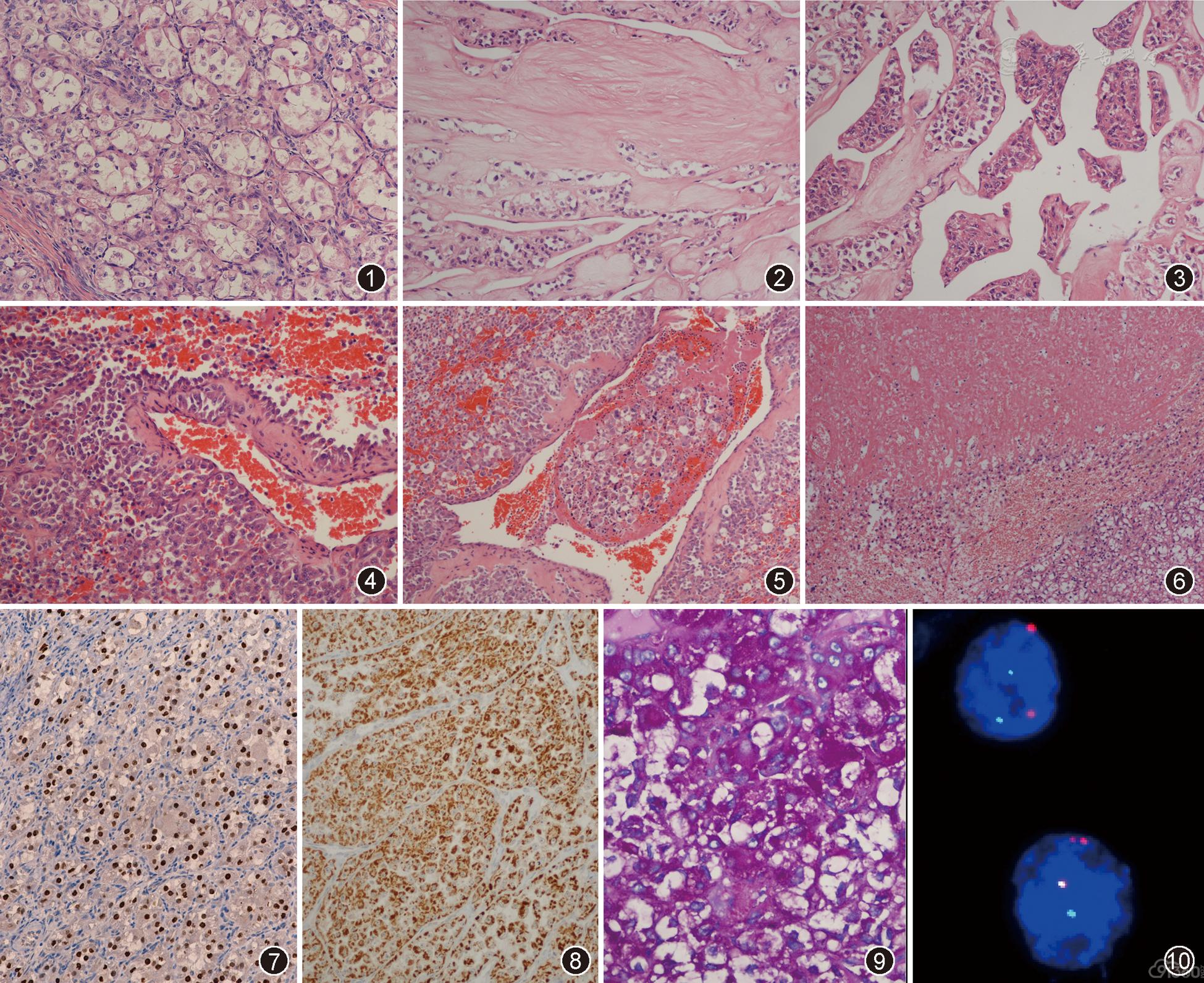 前列腺癌有哪些危害_泡状腺_泡状核细胞癌_带泡状湿疹_甲状腺腺泡_看猎奇