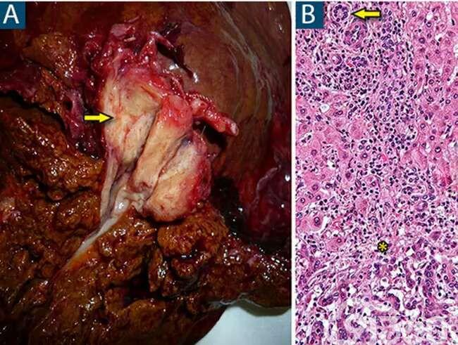 七种常见肝脏肿瘤影像与病理对照(上)     胆管癌最常见的组织学类型