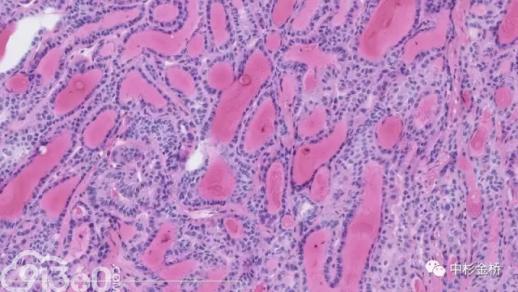嗜碱粒细胞红蓝手绘图