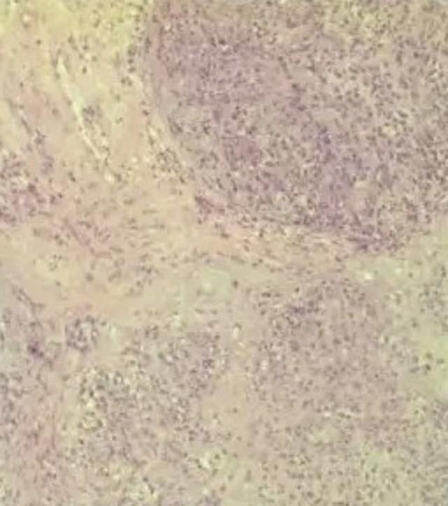 图8 软组织肌上皮肿瘤