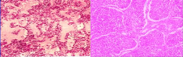 充血水肿期和红色肝样变期