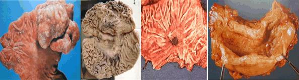 中晚期胃癌:息肉型、溃疡型、浸润型