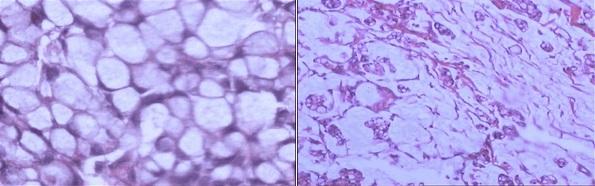 印戒细胞癌和粘液湖