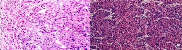 肝细胞型:发生于肝细胞,最多见