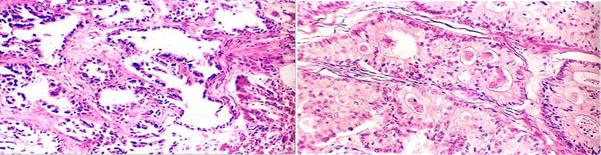 胆管细胞癌:发生于肝内胆管上皮