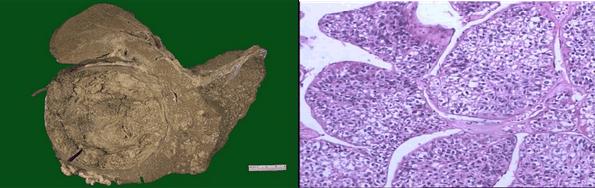 肝细胞肝癌