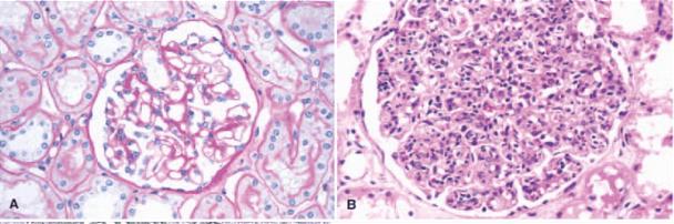 急性弥漫性毛细血管内增生性肾小球肾炎