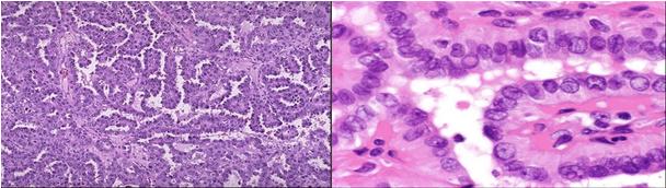 甲状腺乳头状腺癌