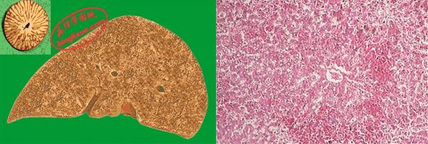 慢性肝淤血