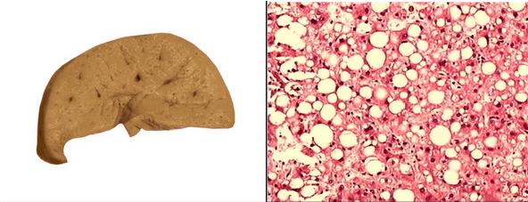肝细胞脂肪变
