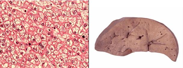 肝细胞水肿