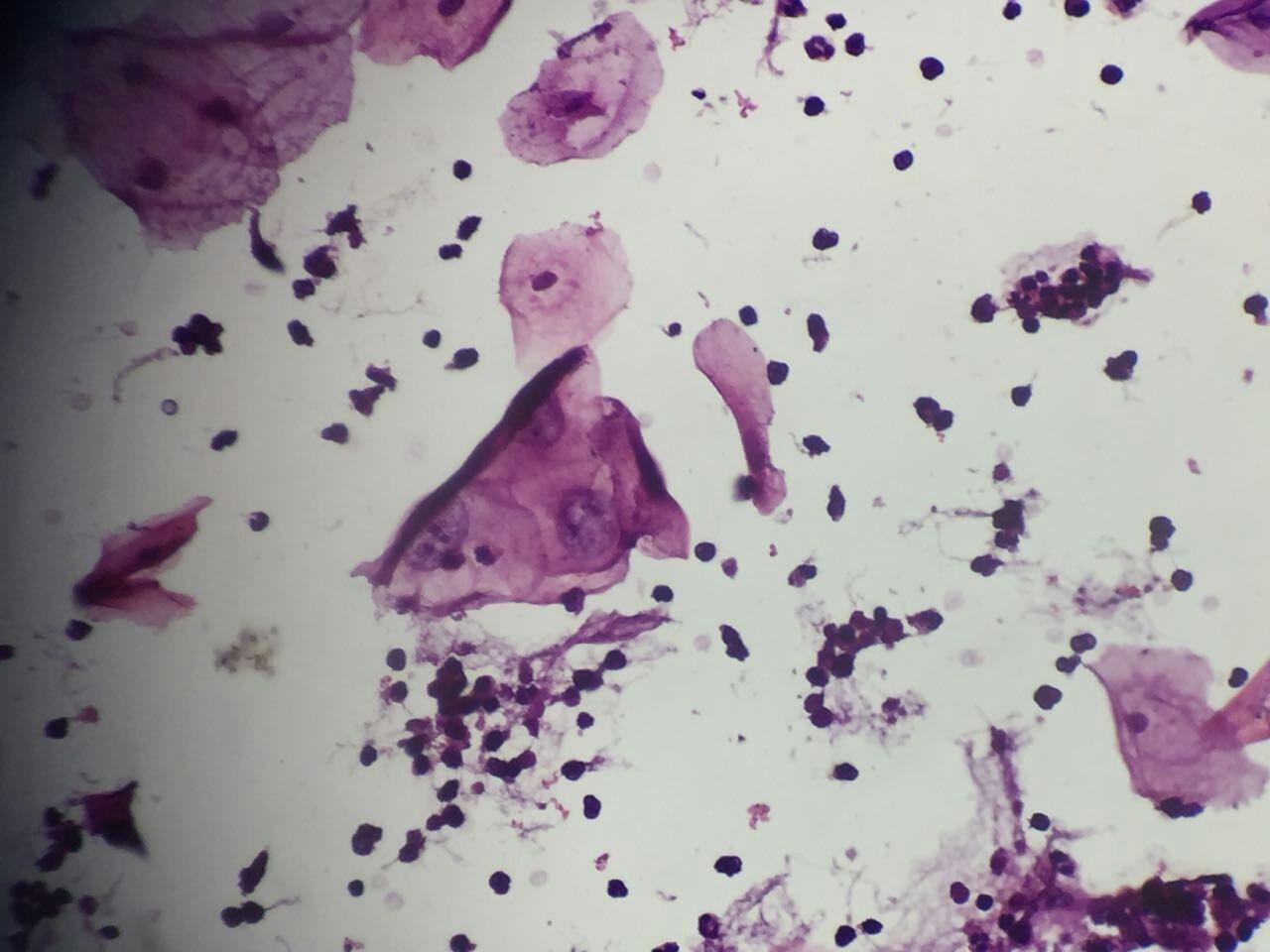 91360.细胞沙龙:45岁女性TCT病例分析
