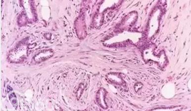 低分化乳腺癌