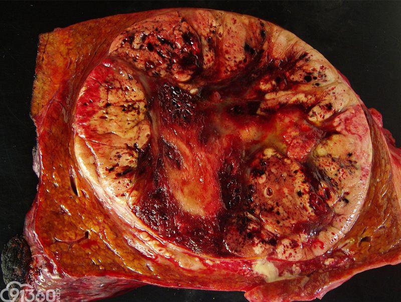 图为巨块型肝癌切面