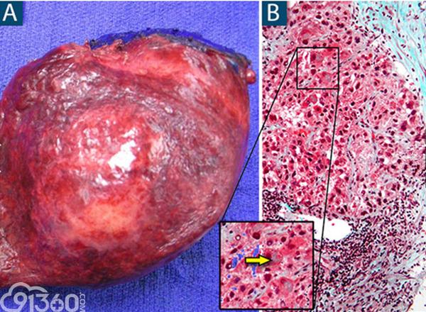 上图A为肝癌术后标本。上图B为肝癌病理切片镜下观,整体可见肝细胞的排列和正常结构消失,核异型性明显,右上角的青色区域为肝纤维化,箭头所指为Mallory小体