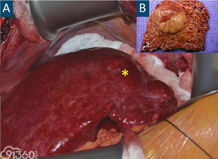 图A中的星标代表肝硬化结节,图B是肝癌切除术后标本,注意肿瘤外层包膜