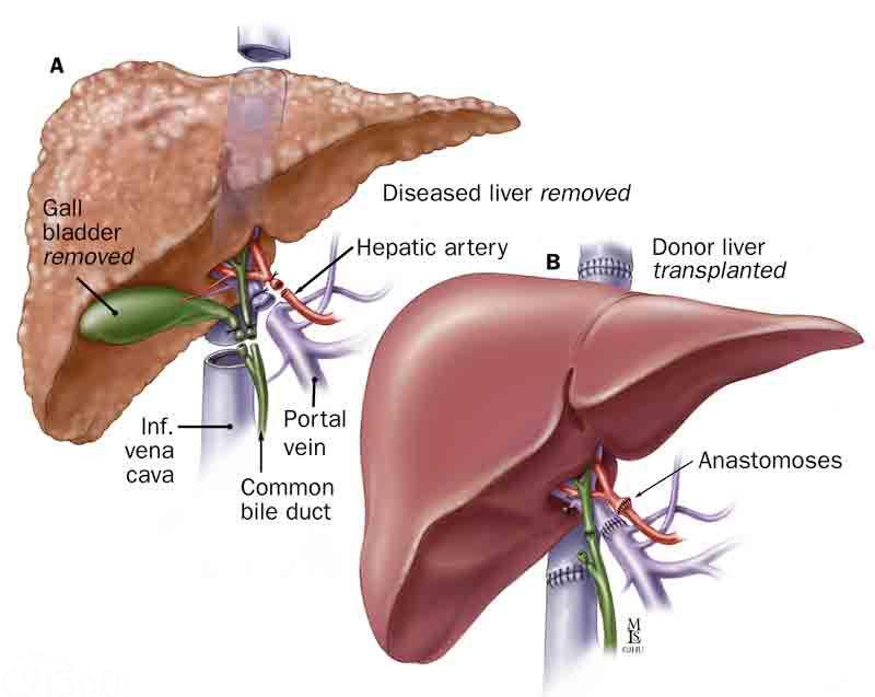 上图为肝移植前后对比