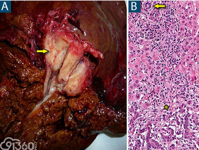 上图A为肝内胆管癌,上图B为胆管癌术后病例切片镜下观