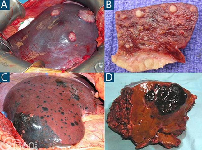上图A和图C是肝转移癌术中照片,上图B是肝癌肝内转移卫星灶切面,图D是切除的黑色素瘤肝转移标本